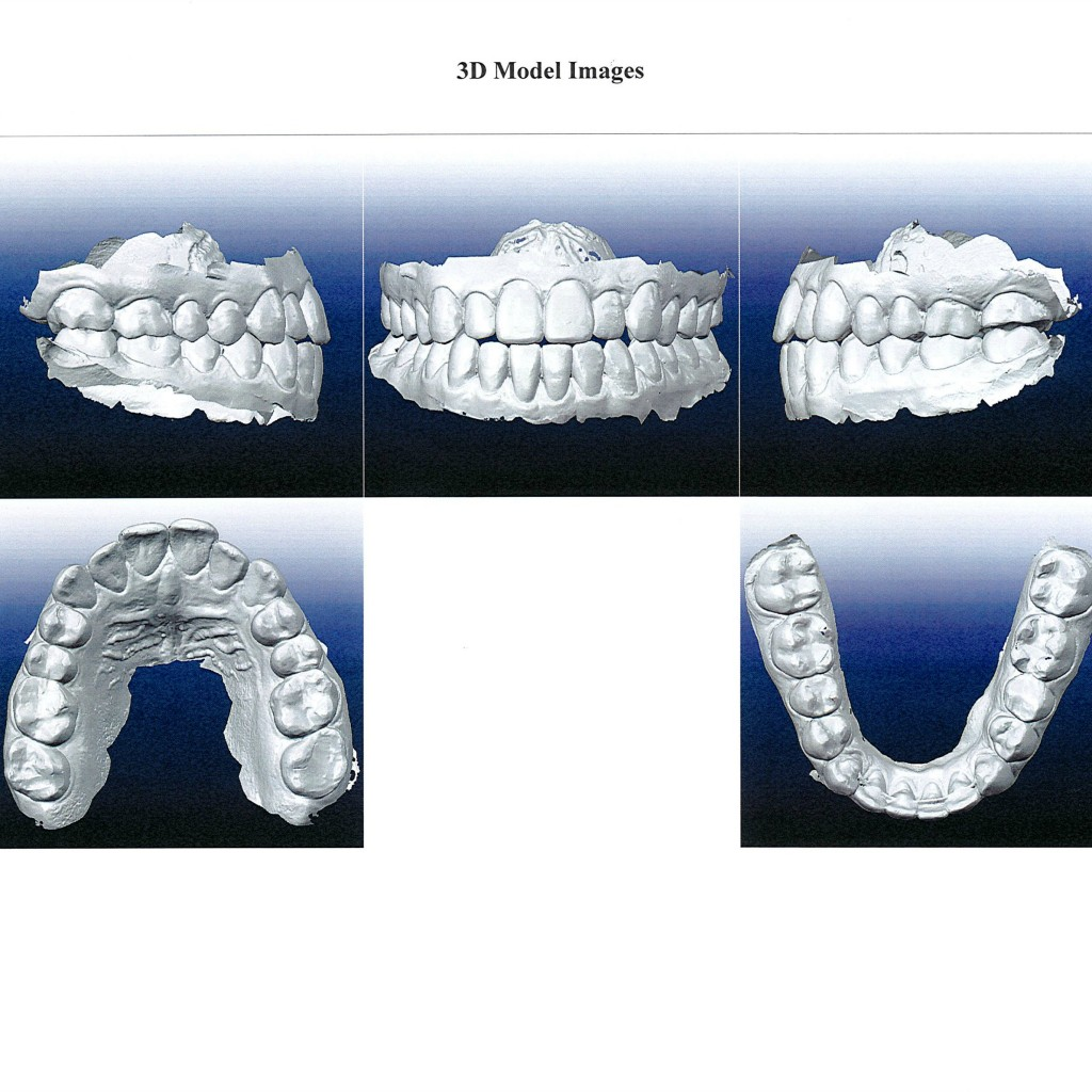 orthodontist london ontario, Dr. Drew Smith, invisalign, london ontario